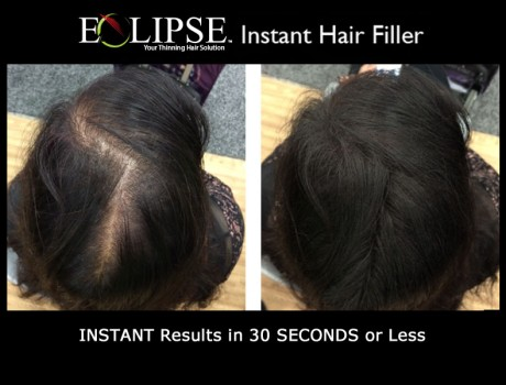 See amazing results in just seconds with Eclipse Hair Fiber