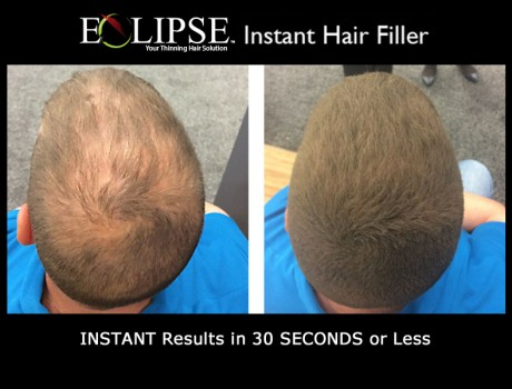 Eclipse Instant Hair Filler for a Thicker, Fuller Head of Hair