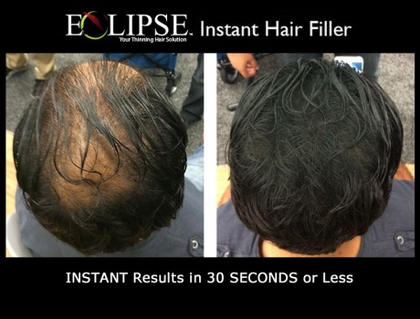 Cover up your thinning areas with Eclipse Hair Fiber